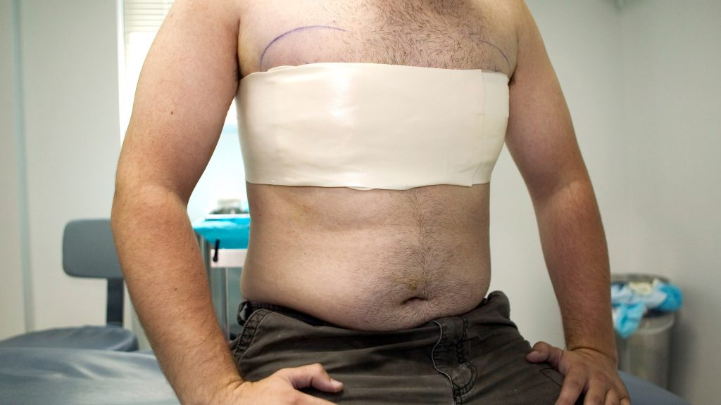Gynecomastia Surgery- A Worthy Choice for Patients
